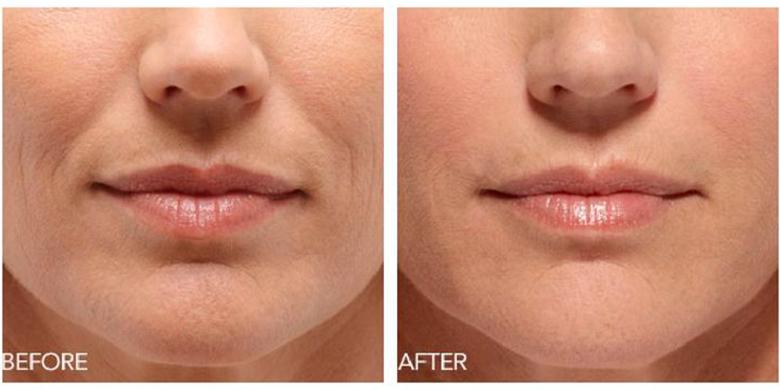 is Clinical до и после фото